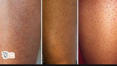 كيفية التخلص من الشعر تحت الجلد والنقط السوداء نهائياً