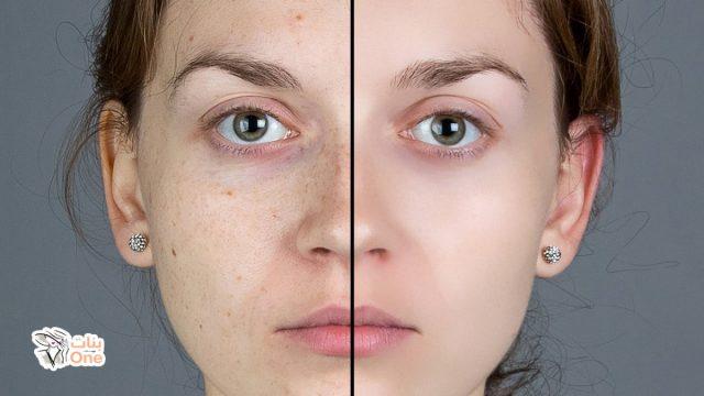 إزالة النمش من الوجه في أسبوع