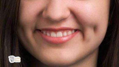 طريقة عمل غمازات في الوجه