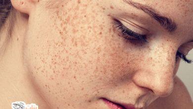 علاجات منزلية تساعدك على التخلص من النمش