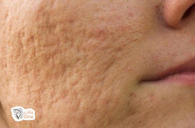 طرق إزالة آثار الحبوب من الوجه