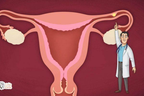 اعراض الحمل خارج الرحم الاكيده وأسبابه