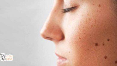كيفية إزالة البقع البنية من الوجه بالطرق الطبيعية