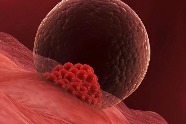 اعراض انغراس البويضة في الرحم