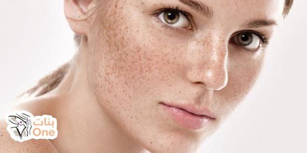كيف تعالج النمش من الوجه