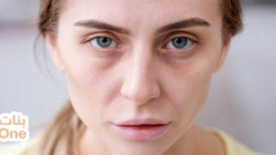 ما أسباب شحوب الوجه وما طرق العلاج؟