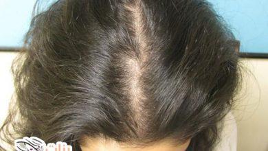 أفضل علاج طبيعي لتساقط الشعر