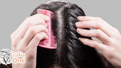 طريقة إزالة القشرة من الشعر نهائياً بوصفة مذهلة