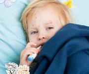 ما هو علاج جدري الماء عند الأطفال