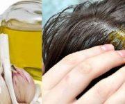 طريقة علاج تساقط الشعر بالثوم خطوة بخطوة