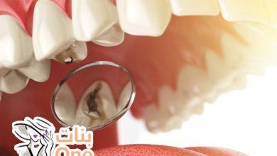 كيف أعالج تسوس الأسنان في المنزل