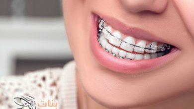 فوائد وأضرار تقويم الأسنان