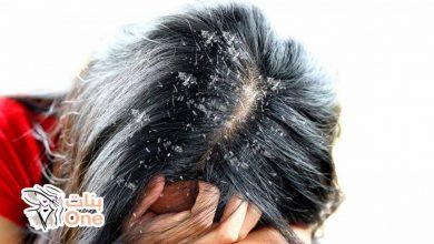 أقوى وصفة لإزالة القشرة من الشعر