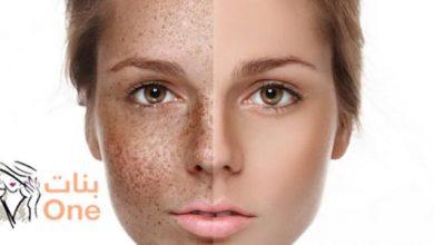 طرق إزالة الكلف من الوجه طبيعياً