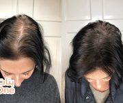 علاج تساقط الشعر الشديد بالوصفات الطبيعية