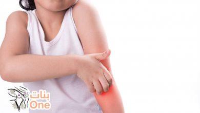 أسباب ظهور حساسية الجلد عند الأطفال