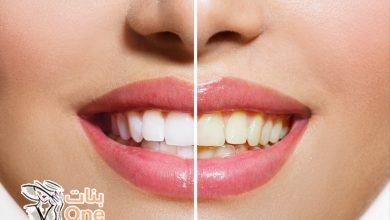 أفضل طرق تبييض الأسنان بدون أضرار