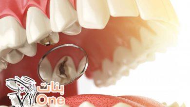 علاج تسوس الأسنان وأسبابه
