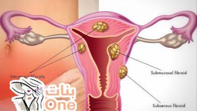 ما هي لحمية الرحم