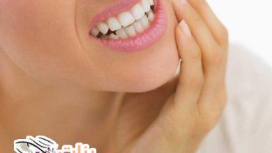 طرق إزالة تسوس الأسنان في المنزل
