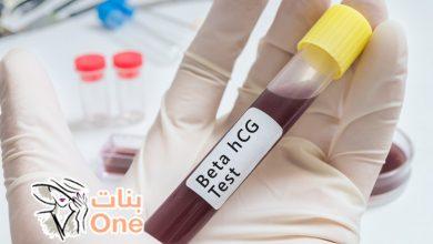اقصى مدة لظهور هرمون الحمل في الدم