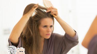 كيفية علاج قشرة الشعر المزمنة