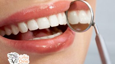 تعرفي على عيوب زراعة الأسنان