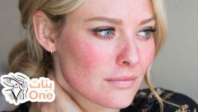 وصفة لإزالة احمرار الوجه