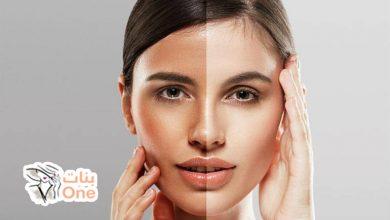 ما هي أسباب اسوداد الوجه