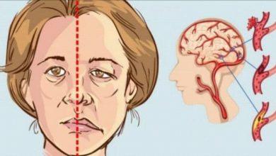 ما هي آثار جلطة الدماغ وأعراضها