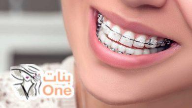 كيفية تنظيف الأسنان مع التقويم