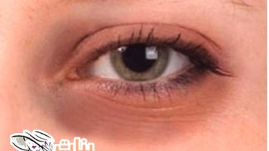 أفضل علاج لسواد تحت العين