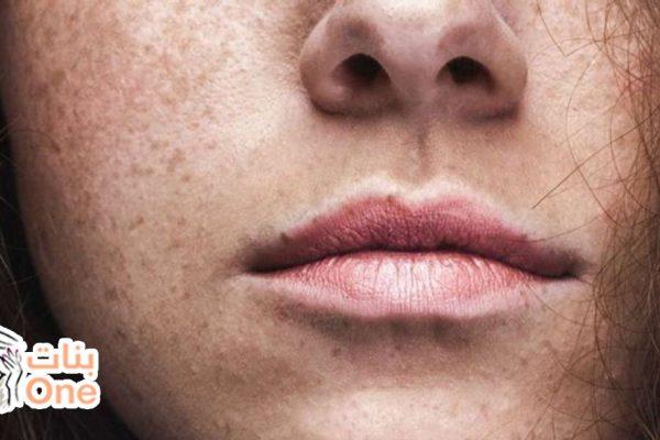 كيفية إزالة الاسمرار حول الفم