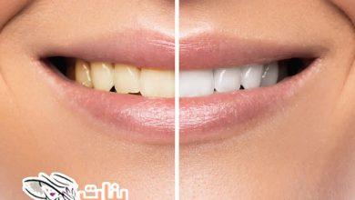 أسهل طريقة لتبييض الأسنان من أول مرة