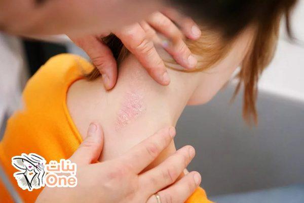 أعراض مرض الصدفية عند الأطفال
