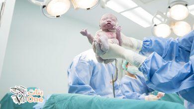 متى تتم الولادة القيصرية في الشهر التاسع