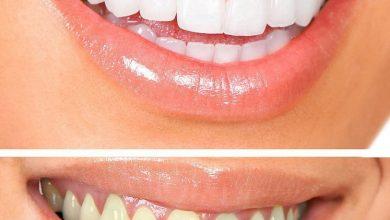 طريقة تبيض الأسنان طبيعياً في البيت