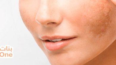 أفضل وصفات لإزالة الكلف عن الوجه