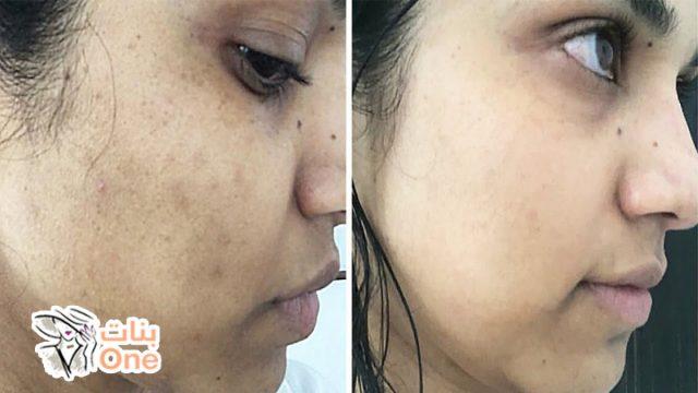 كيفية إزالة البقع من الوجه بسرعة