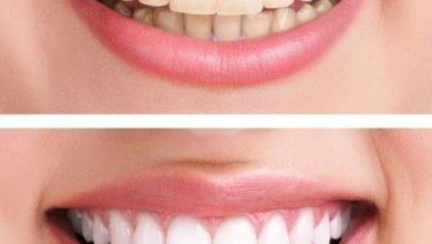ما هي أنواع تبييض الأسنان