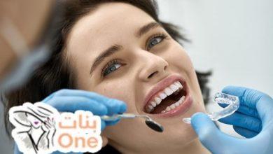 كيف تحافظ على أسنانك من التآكل والتسوس