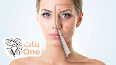 3 وصفات لتصفية البشرة الدهنية وإزالة الحبوب