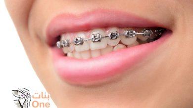 أنواع تقويم الأسنان وأفضلها