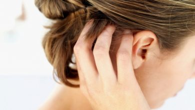 كيفية التخلص من حكة الشعر