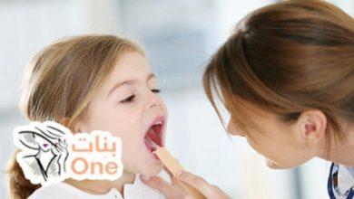 أسباب الفطريات لدى الأطفال في الفم وعلاجها