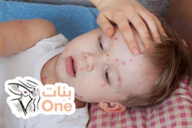 أسباب ظهور حبوب في جسم الأطفال وعلاجها