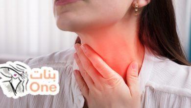 أعراض التهاب الغدد اللمفاوية في الرقبة