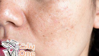 طريقة إزالة الكلف من الوجه بسرعة