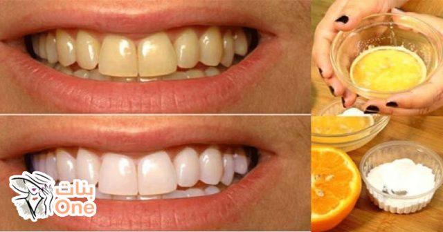 طرق تبييض الأسنان الصفراء