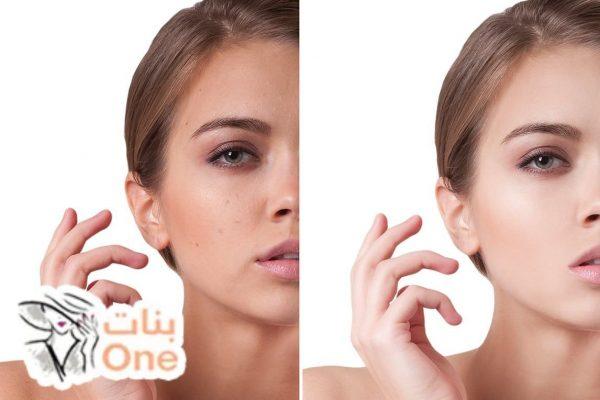 طريقة لإزالة بقع الحبوب من الوجه
